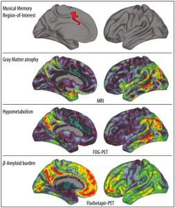 El gráfico muestra (en rojo, arriba) el giro cingulado anterior donde se almacenan los recuerdos musicales. Más abajo, visión bilateral de tres biomarcadores de Alzhéimer, en rojo las más afectadas. / MPI F. HUMAN COGNITIVE AND BRAIN SCIENCES